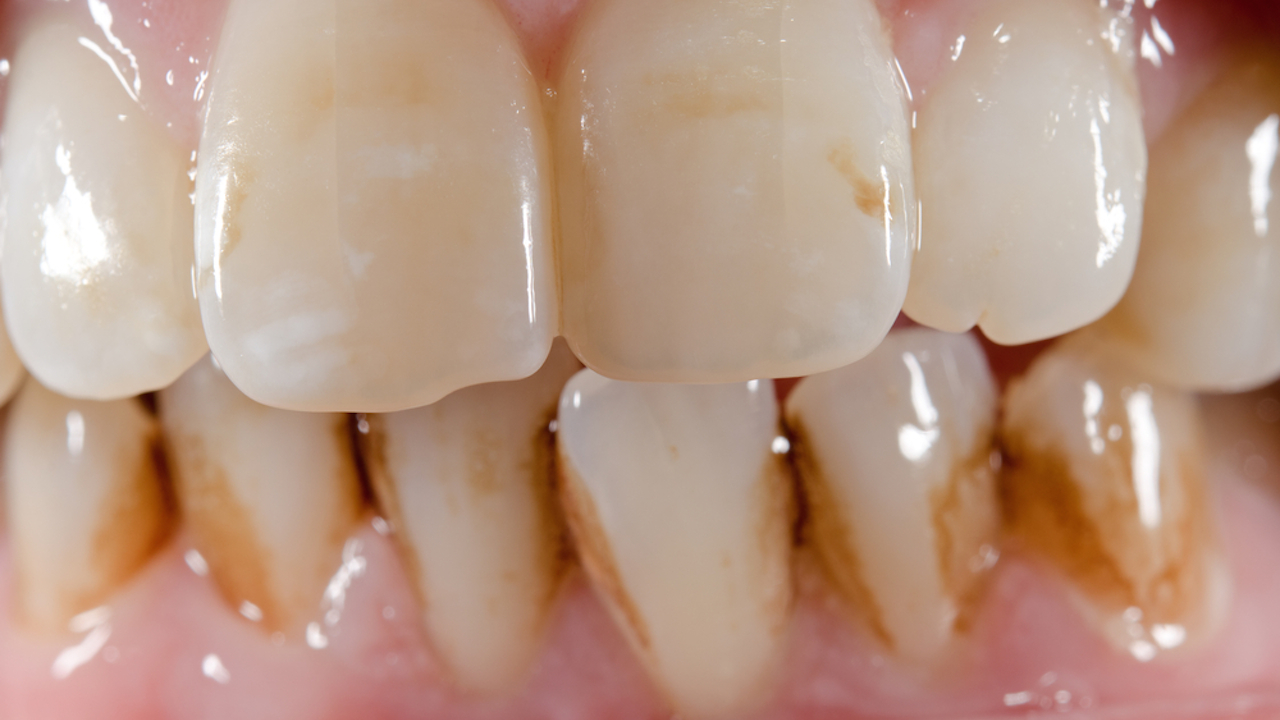 Diş Sararması Neden Olur Nasıl Geçer