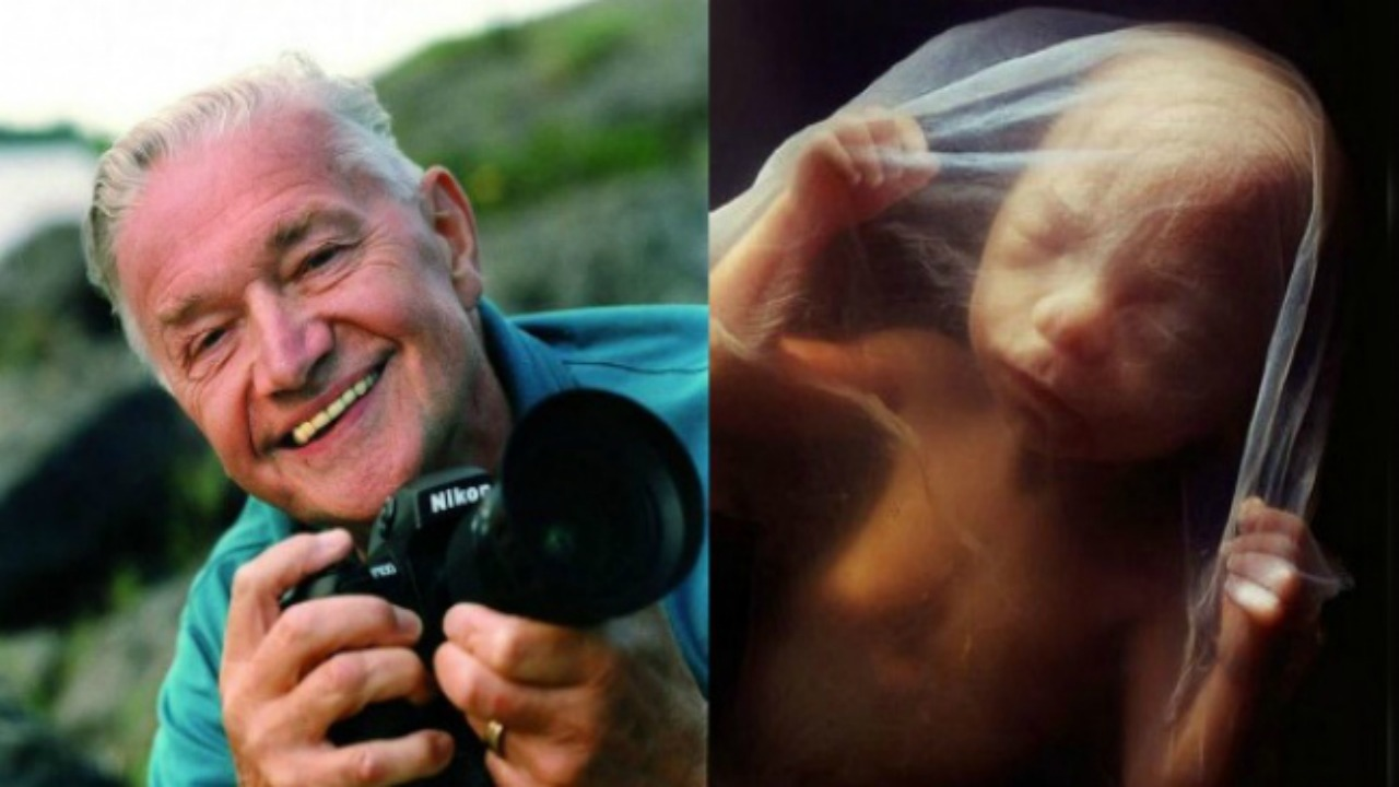 Lennart Nilsson, insan embriyosunu fotoğraflıyor | Uplifers