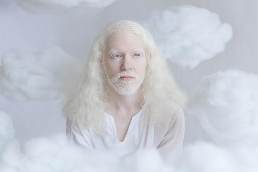 albino adam