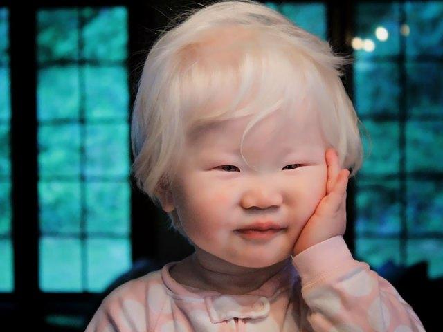albino bebek