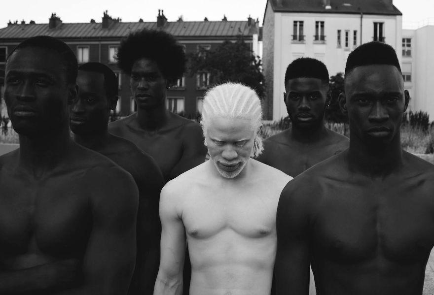 albino erkek