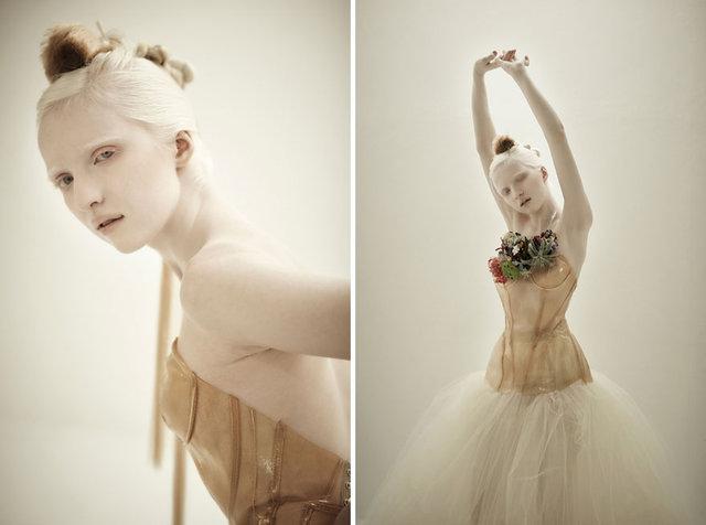 albino genç kadın