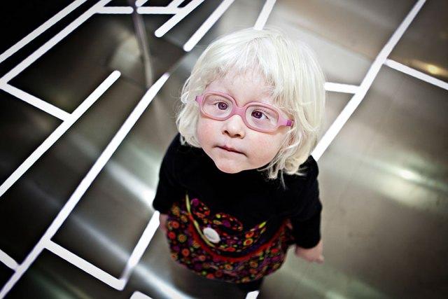 albino gözlüklü kız