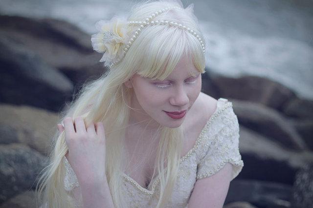 albino güzel kız