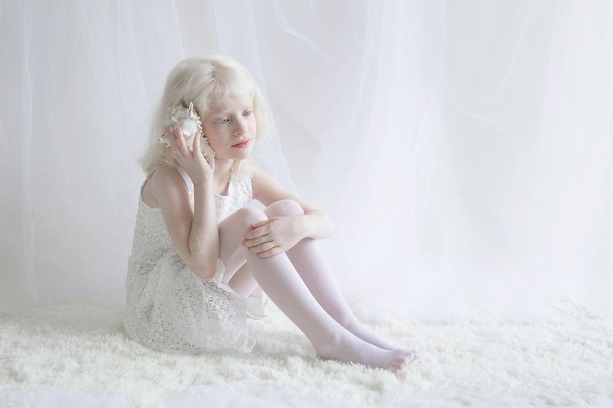 albino müzik dinleyen kız