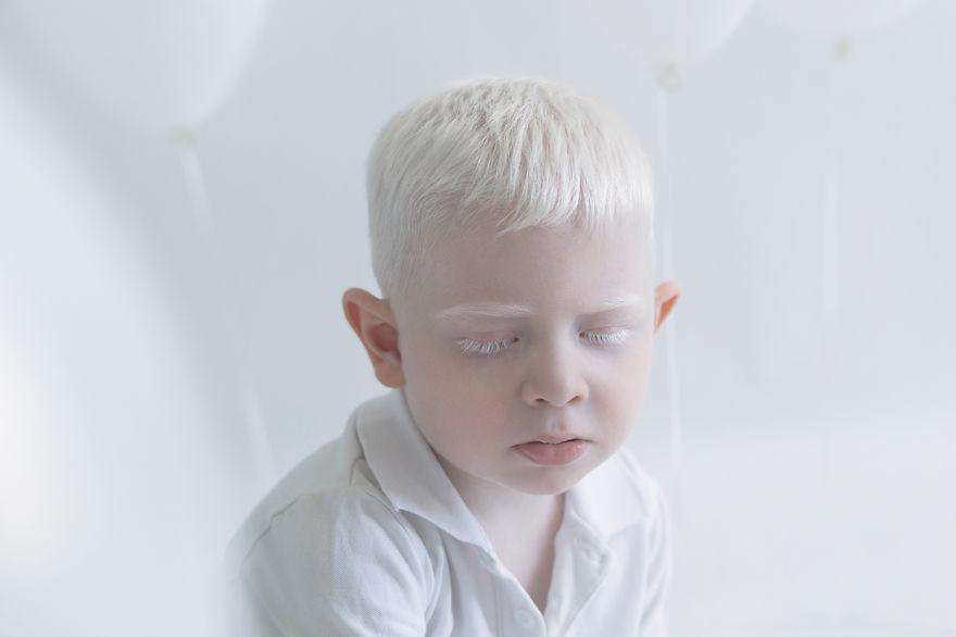 albino uyuyan çocuk