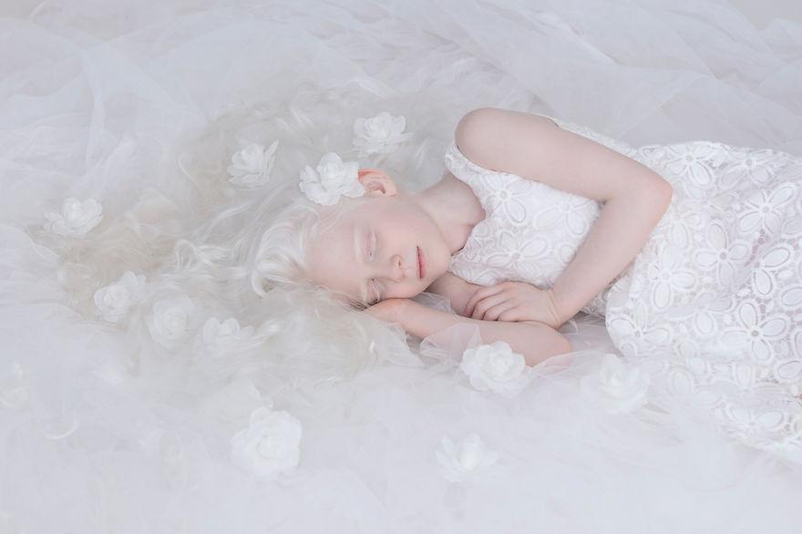 albino uyuyan kız