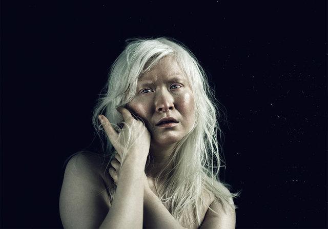 albino yaşlı bayan