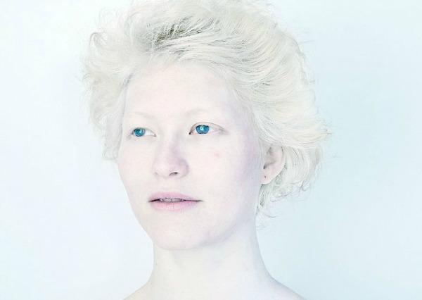 albino yaşlı kadın