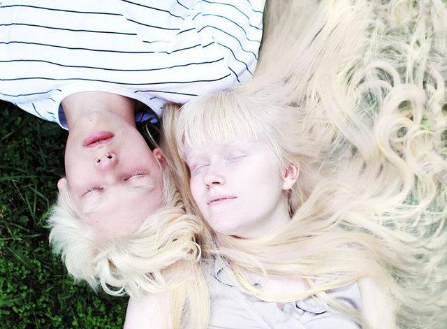 albinolar