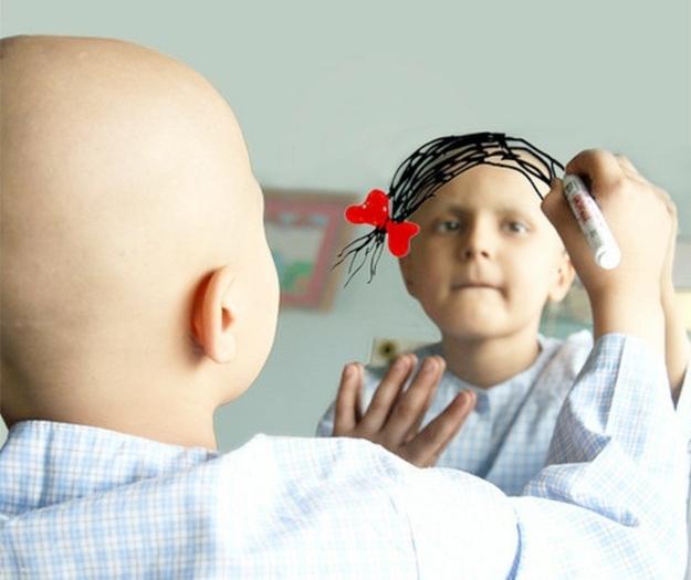 Kanser hastası kız
