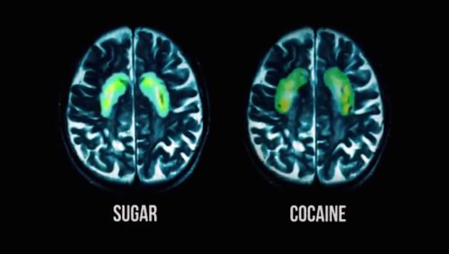 fed-up-sugar-cocaine-brain-scan-620