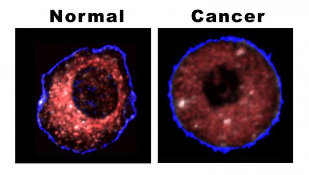 kanser 1