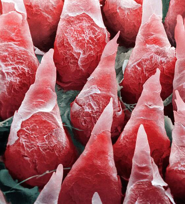 A-microscopic-image-of-a-human-tongue