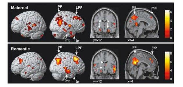 annelik beyin 1