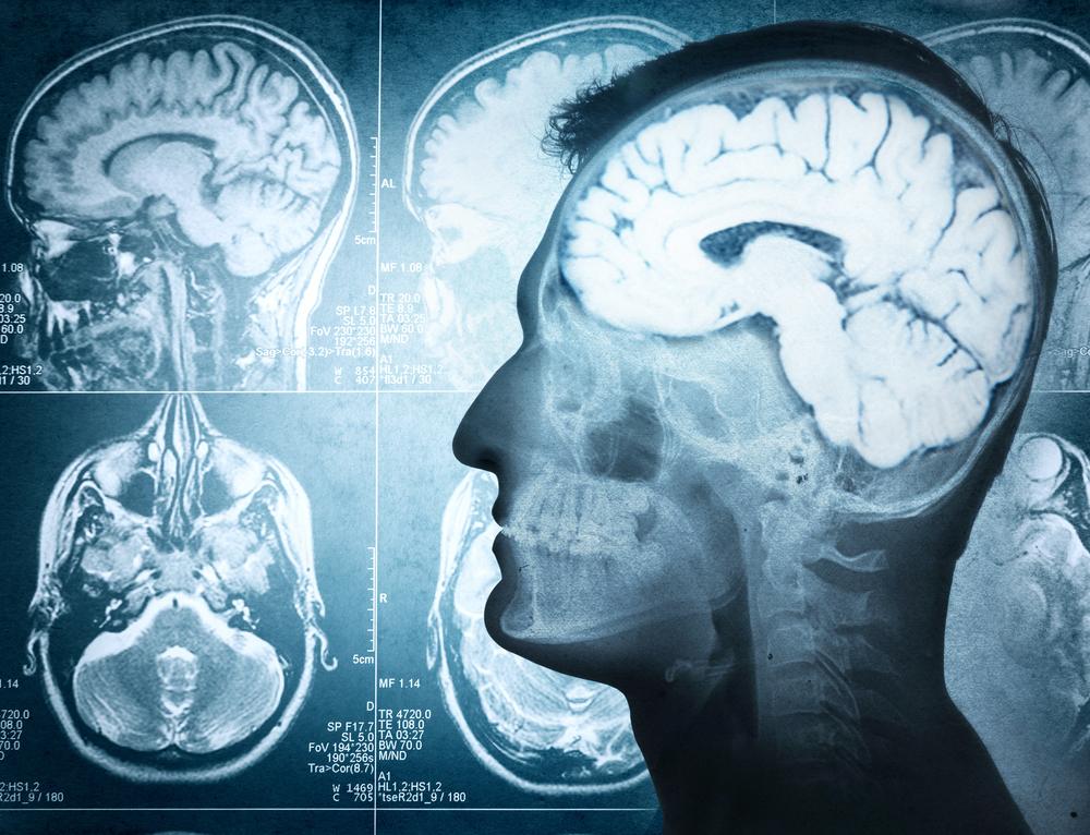 Beyin proteziyle hafıza kaybını aşmak artık mümkün olabilecek
