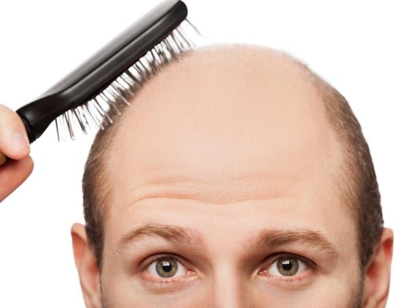 erkeklerde saç kaybı